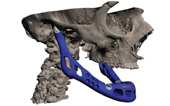 Custom Jaw Transplant created with 3-D Printer - 27 Science Fictions That Became Science Facts in 2012